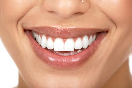 veneers Johns Creek dentistry